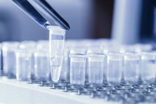 image for The lowdown on Legionella testing